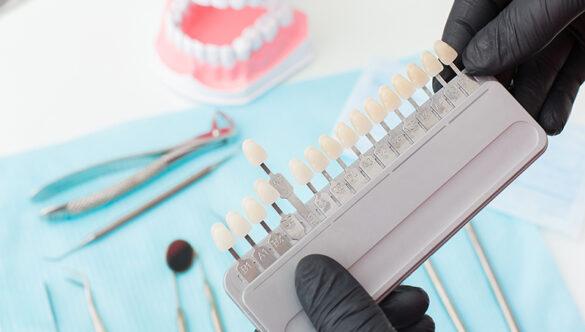 Implantologia Dentale a Pinerolo