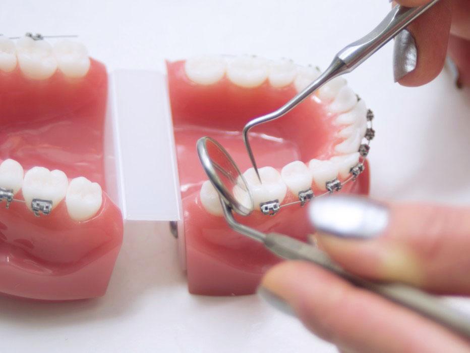 apparecchi ortodontici pinerolo