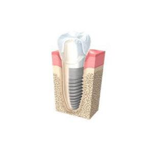 Impianti Dentali Pinerolo