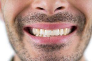Denti gialli: quali sono gli alimenti che macchiano i denti?