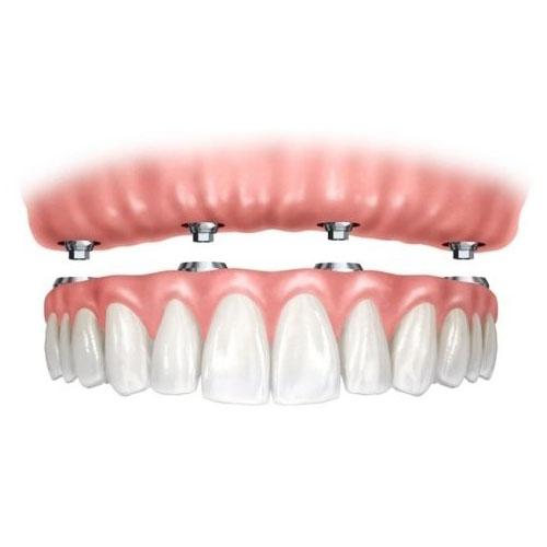 All on Four Impianti dentali Torino Centro Odontoiatrico Happy S