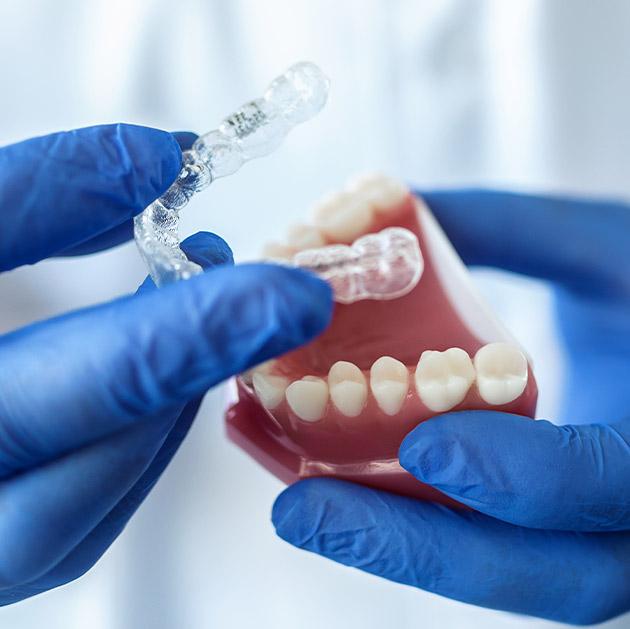 Apparecchio denti invisibile Centro Odontoiatrico Happy Smile Pi