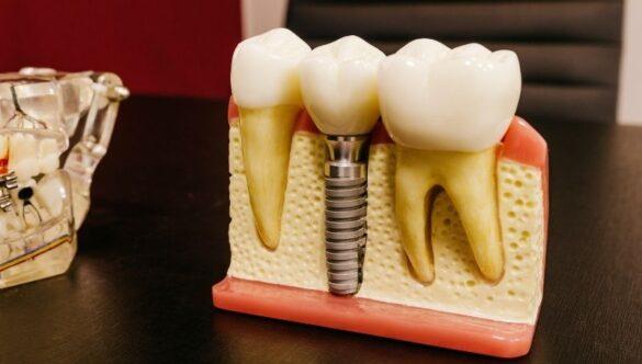 Impianto dentale: quanto può durare