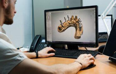 Chirurgia computer guidata