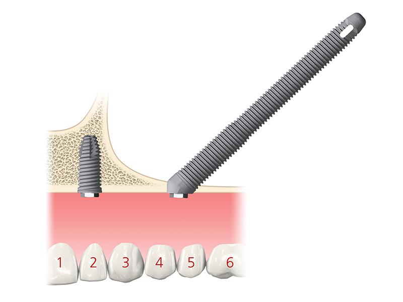 dettaglio chirurgia implantologica zigomatica viti