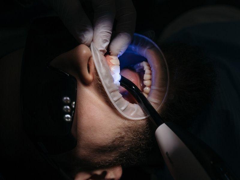 cura della carie e odontoiatria conservativa happy smile luce ultravioletta