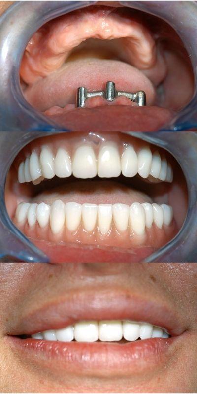 protesi dentarie fisse impianti dentali happy smile