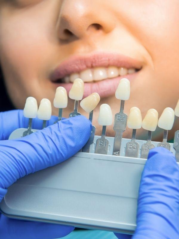 impianti zigomatici a torino centro odontoiatrico happy smile