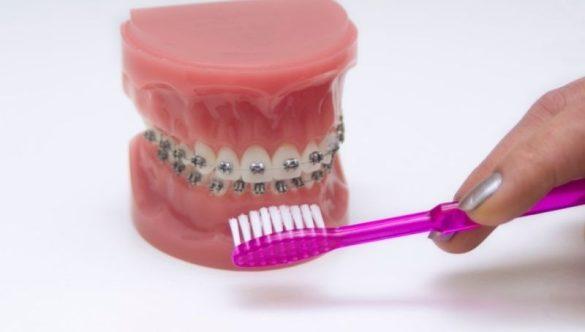 Ortodonzia fissa: cos'è e a cosa serve